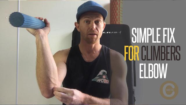 Treating climbers elbow
